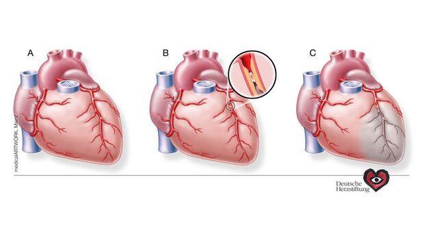 (A) Das Herz wird von den Herzkranzgefäßen mit Blut versorgt. (B) Durch Fett- und Kalkablagerungen können Engstellen im Herzkranzgefäß entstehen, welche die Blutversorgung verhindert. (C ) Das Herz wird in diesem Bereich nicht mehr mit Blut versorgt und das entsprechende Herzgewebe stirbt ab.