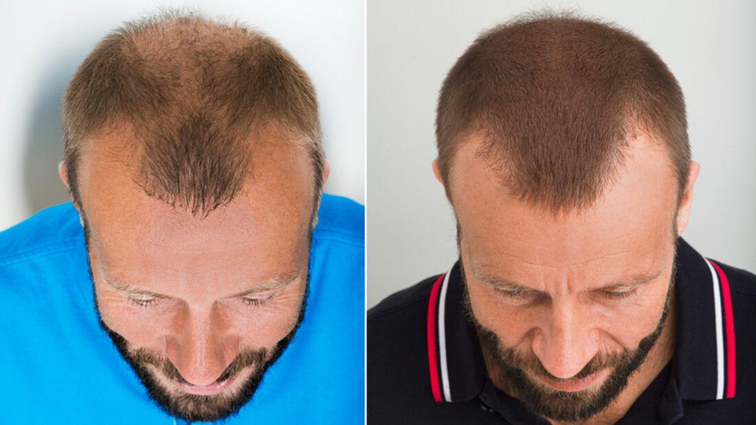 2800 Haarfollikel wurden Oliver bei einer Haartransplantation verpflanzt