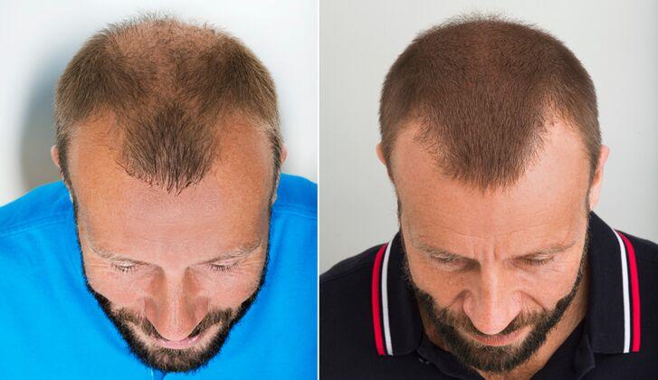 Deutschland kosten haartransplantation geheimratsecken ▷ Haartransplantation