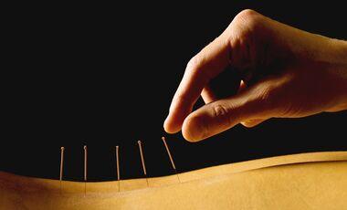 Akupunktur ist vielseitig einsetzbar