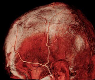 Angiografie des Kopfes auf neun Uhr