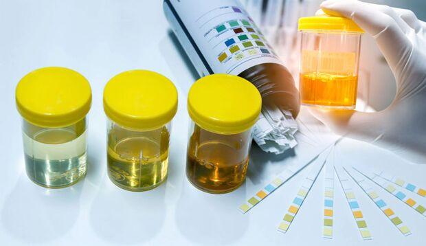 Anhand einer Farbskala kann man erkennen, ob der Urin auffällig ist