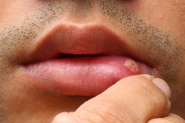 Aphthen sind schmerzhafte Bläschen im Mund