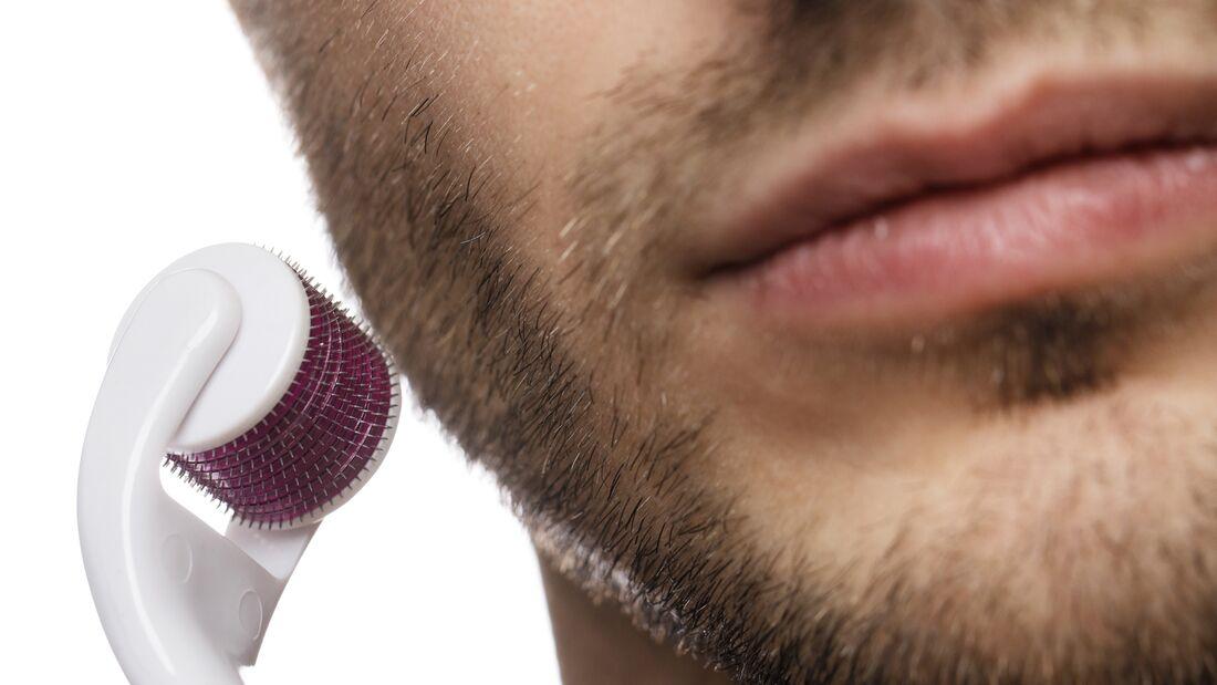 Bartroller: Das musst du wissen