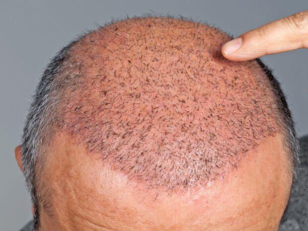 Bei Haarausfall entscheiden sich immer mehr Männer für eine Haartransplantation