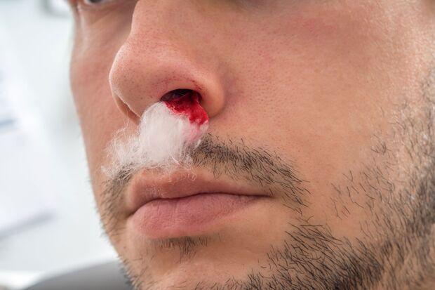 Bei Nasenbluten ein Taschentuch in die Nase zu stecken, ist keine gute Idee. Beim Herausziehen reißt die heilende Wunde gleich wieder auf .
