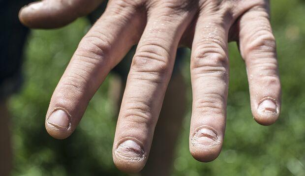 Bei Pilzerkrankungen verfärbt sich der Nagel und wird brüchig.