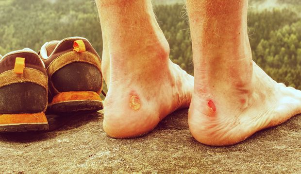 Bei offenen Blasen am Fuß sollte die Wunde mit einem Pflaster geschützt werden