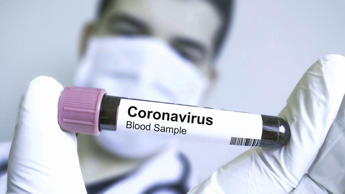 Das Coronavirus kann gefährliche Lungenentzündungen auslösen