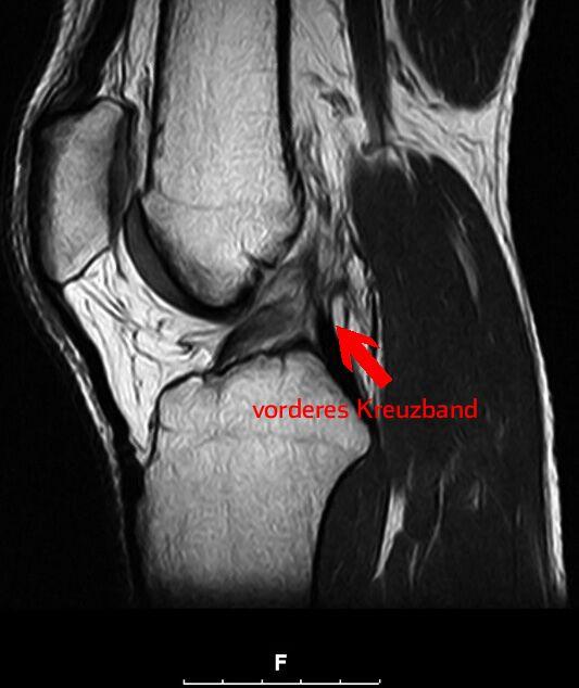 Das Kreuzband stabilisiert das Knie und hält es zusammen