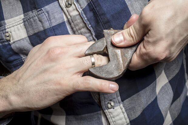 Der Ehering kann zur Penisfalle werden