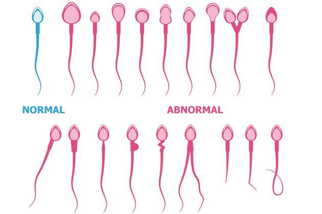 Männliche Menge Sperma