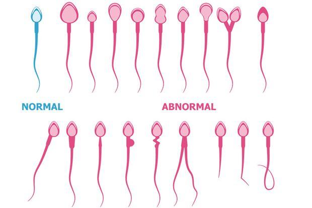 Die Anzahl von abnormen Samenzellen steigt ständig