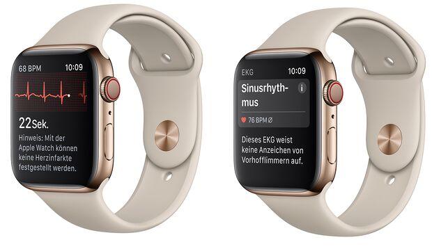 Die Apple Watch nutzt die EKG-Funktion, um nach Herzrhythmusstörungen zu suchen