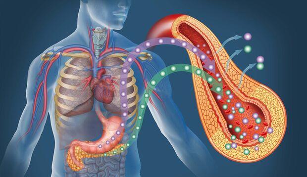 Die Bauchspeicheldrüse muss alles geben, um mit der Insulinproduktion nachzukommen