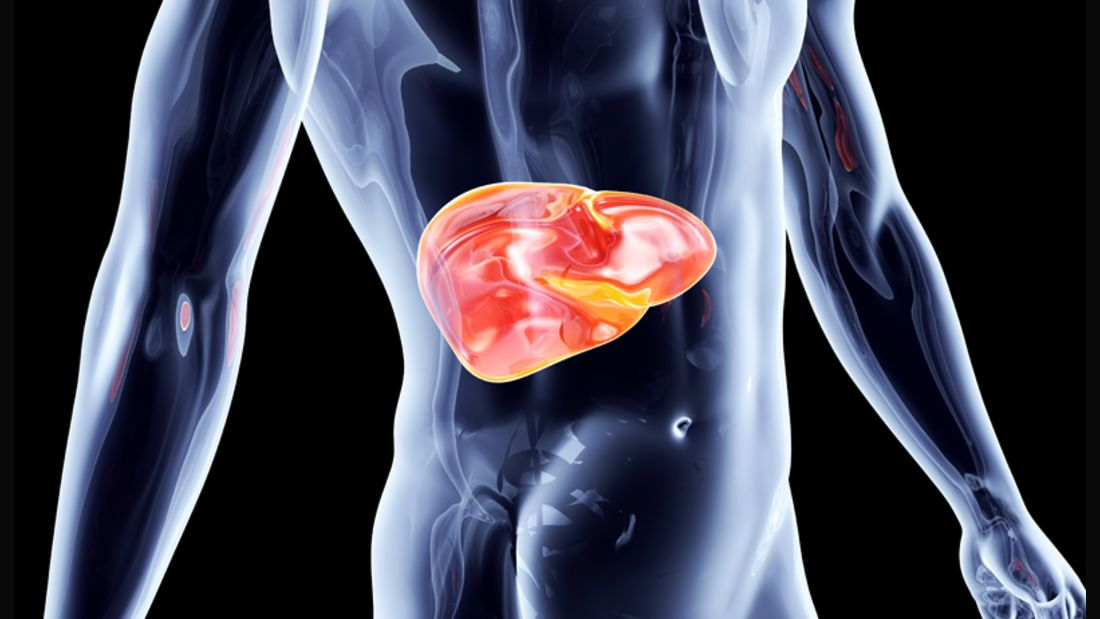 Die Fettleber gilt als Vorstufe von Krankheiten wie Hepatitis oder Leberzirrhose.
