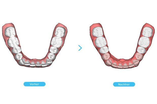 Die Zähne im Vorher-Nachher-Vergleich
