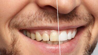 Die besten Bleaching-Produkte für weiße Zähne