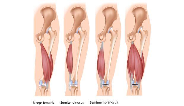 Die ischiocrurale Muskulatur