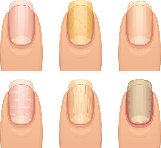 Die typischen Verformungen und Verfärbungen der Fingernägel: Dellen, Rillen, brüchige Nägel, weiße Flecken und braune Flecken