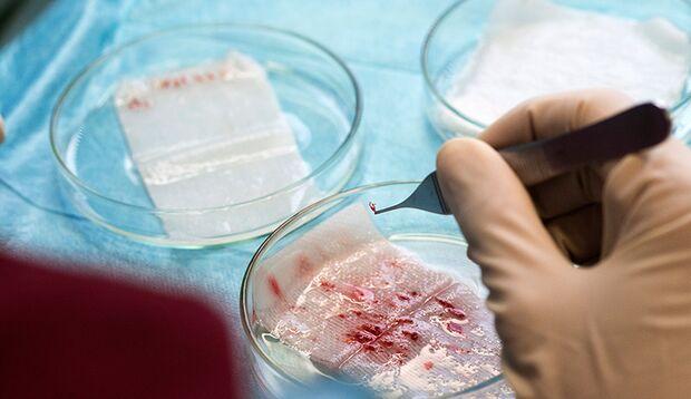 Die vom Haartransplantations-Roboter gepflückten Haar-Follikel lagern in einer Nährlösung