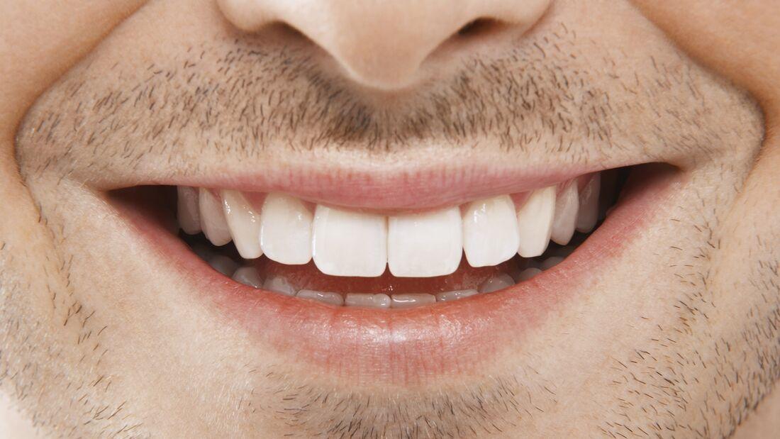 Diese Lebensmittel verfärben die Zähne