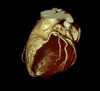 Dreidimensionale Darstellung des Herzens mit den Herzkranzgefäßen