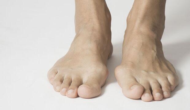 Ein verformter Großzehknochen (Hallux valgus) kann Fußschmerzen auslösen