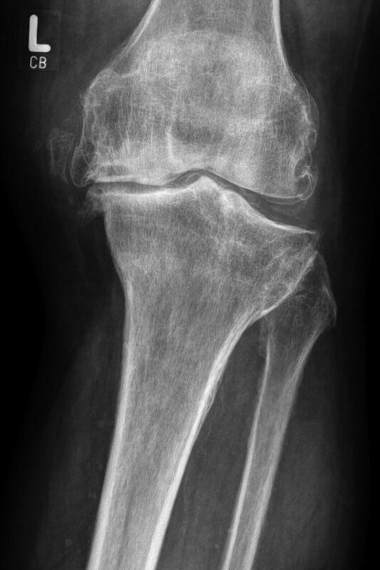 Eine Verletzung des Knorpels tritt häufig im Kniegelenk auf