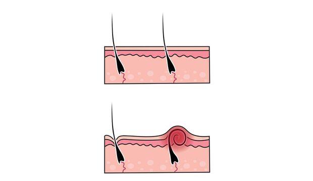 Eine der häufigsten Folgen der Rasur sind eingewachsene Haare, die zu Entzündungen führen