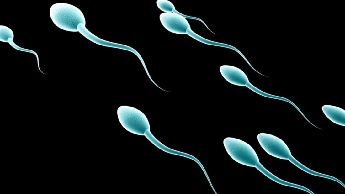 Eingeschränkte Spermienproduktion durch gespritzte Testosteron?