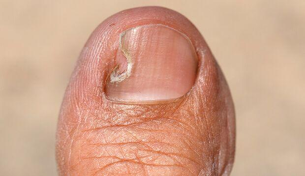 Folge von Nägelkauen: eingewachsener Nagel
