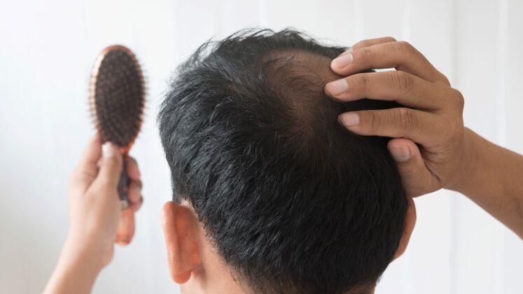 Haarausfall Stoppen So Beugst Du Einer Glatze Vor Men S Health