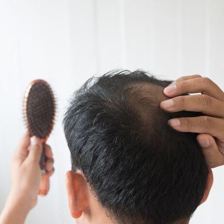 Genetischer Haarausfall