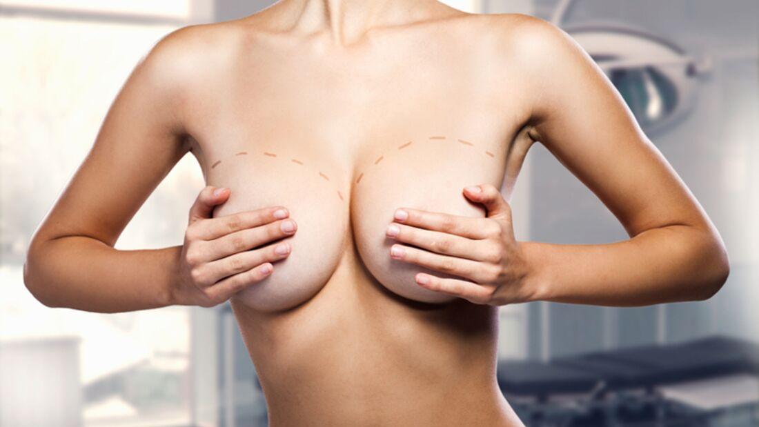 Hatte Ihre neue Flamme eine Brust-OP? Suchen Sie unauffällig nach Narben