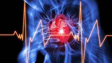Herzinfarkt: 4 lebensrettende Ratschläge