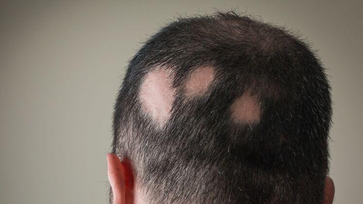 übergang bart glatze