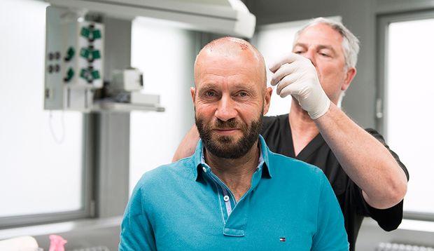 Men's Health Redakteur Oliver nach der Haartransplantation