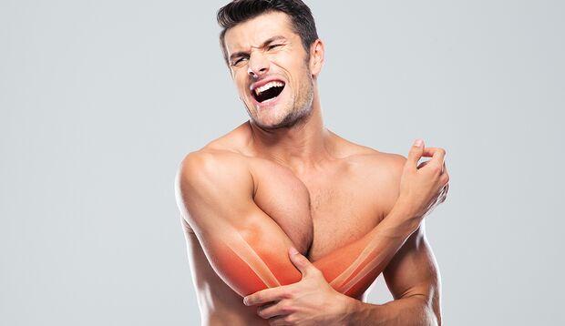 Muskelkater ist eine Folge ungewohnter Bewegung und Überbelastung der Muskeln