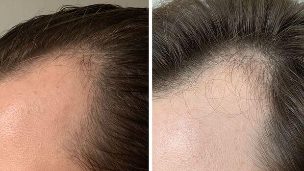 PRP für die Haare: Vorher-Nachher-Vergleich