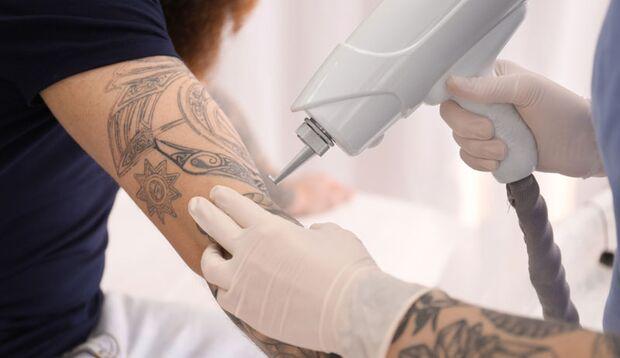 Per Laser lassen sich Tattoos am sichersten entfernen
