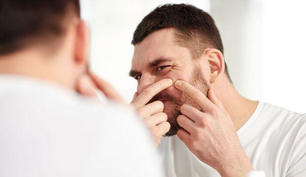 Pickel auszudrücken führt schnell zu Aknenarben