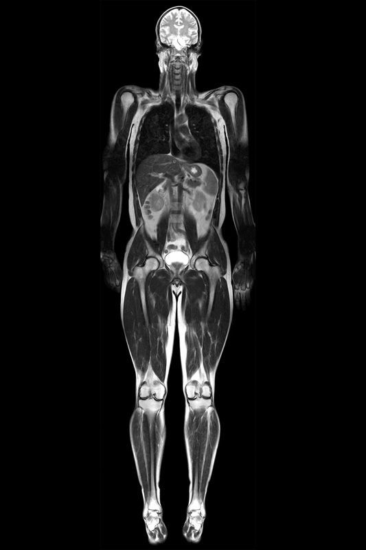 Scheibchenweise Mensch: Mit einer MRT lässt sich der menschliche Körper in Scheiben betrachtenScheibchenweise Mensch: Mit einer MRT lässt sich der menschliche Körper in Scheiben betrachten
