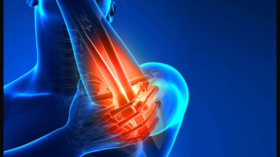 Schmerzen im Arm beim Training?