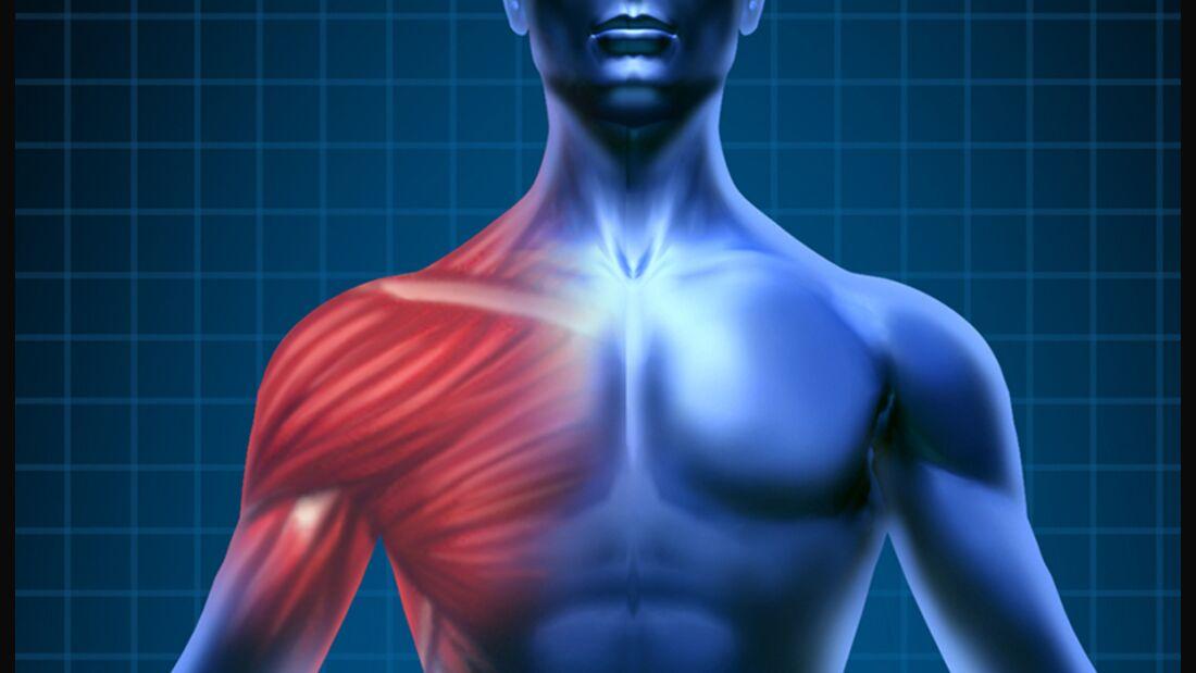 Schulterschmerzen durch Brusttraining?