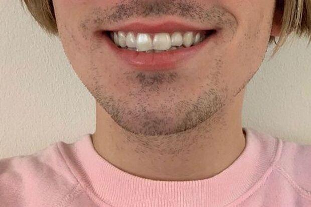 So sieht die unsichtbare Zahnspange aus