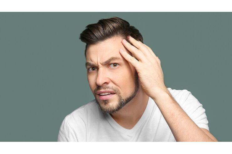 Absetzen bart minoxidil Kreisrunder Haarausfall