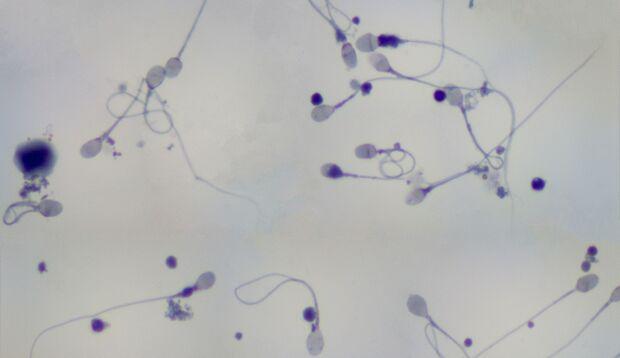 Spermien unter einem Photomicrographen