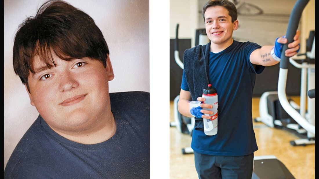 Thorben hat 63 Kilo abgenommen, vorher wog er 130 und nachher 75 Kilo