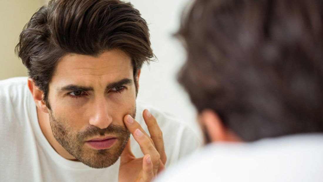 Tipps gegen Aknenarben